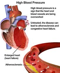 High Blood Pressure bdah