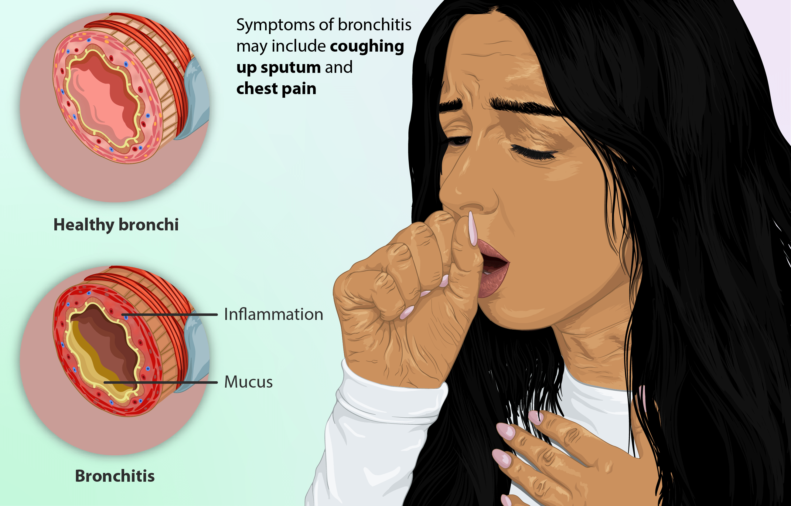 BDAH PERSON suffering_from_Bronchitis